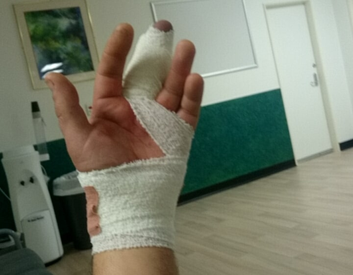 Big up for Wellington Hospital for fixing me up